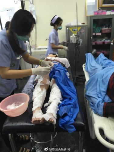 泰国皮皮岛附近一快艇突发爆炸,多名中国人受伤(图:泰国头条新闻微博)