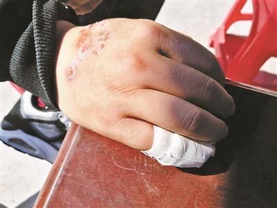 陈强被烧伤的小手指已包扎好