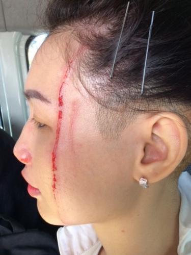 有游客被袋鼠袭击后,头破血流。 澳洲广播公司