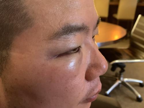 华裔家庭日前正在法推衰遭非洲裔欺侮、进犯、性骚扰、砸车,华裔女亲被揍多拳,左眼瘀青肿涨严峻。(滥觞:好国《天下日报》记者好蕙榆 摄 )